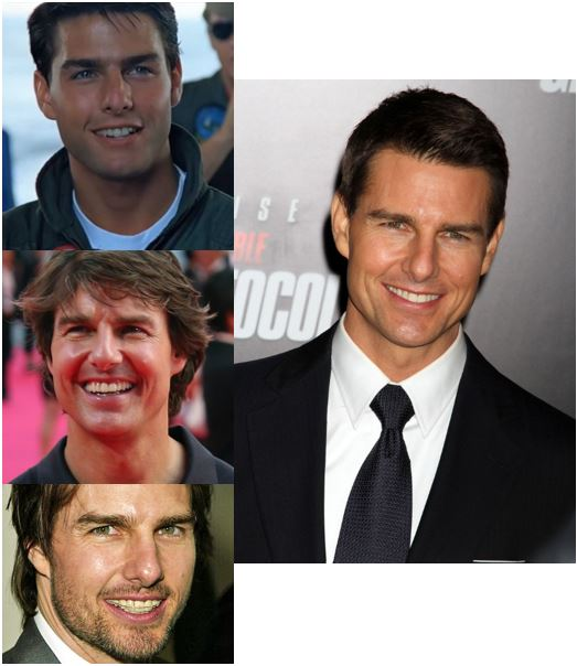 tom cruise smile makeover